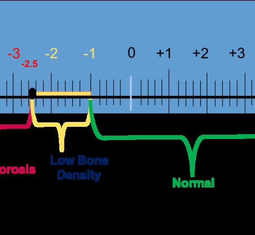 Understanding Bone Density Results