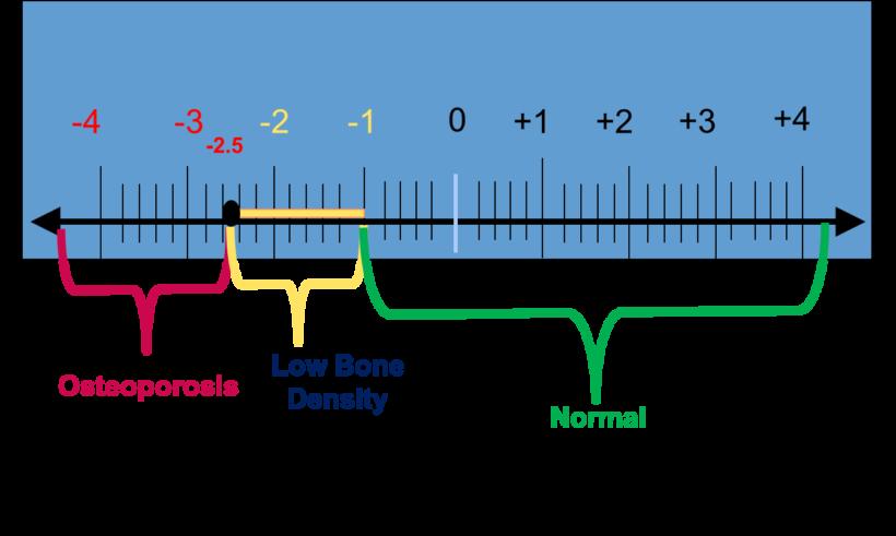 Understanding bone density results american bone health