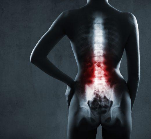 Spine Fracture Awareness